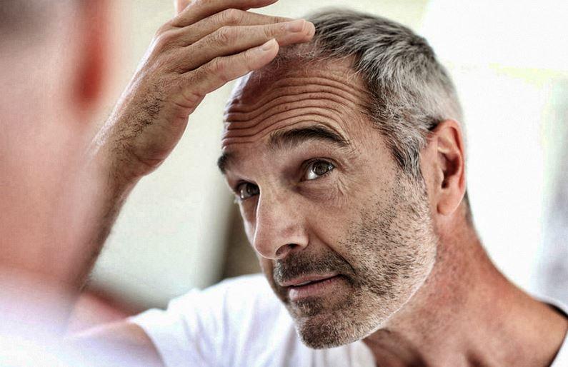 lutter contre la chute des cheveux chez l'homme